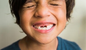 san mateo child smiling with missing teeth