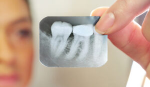x-ray of a tooth examination for root canals